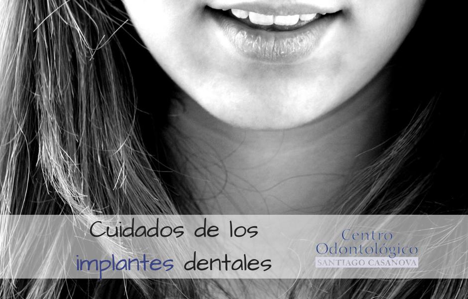 cuidados-implantes-dentales-dr-santiago-casanova
